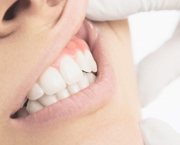 I denti sani aumentano la fertilità