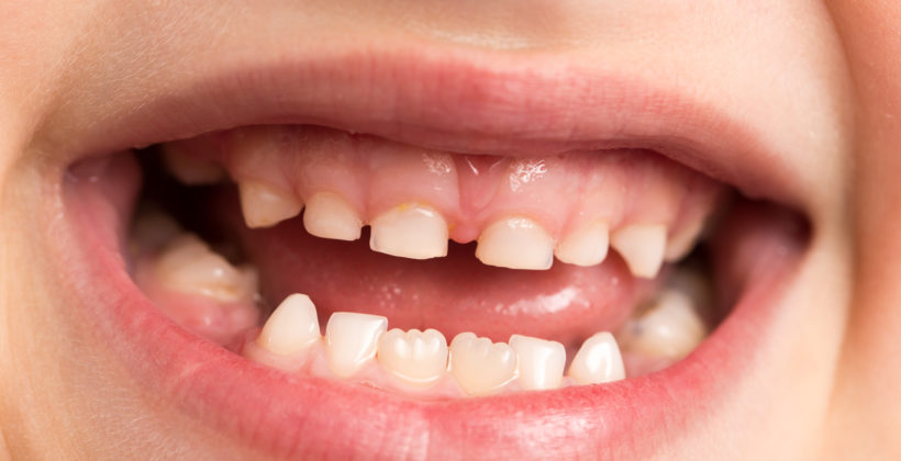 Le sigillature: prevenzione orale nei bambini